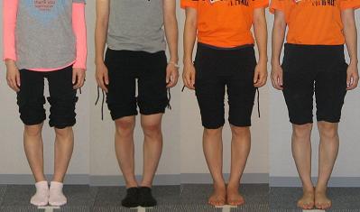 体型の理想を追うことは不幸かも?O脚改善の個人差ついて