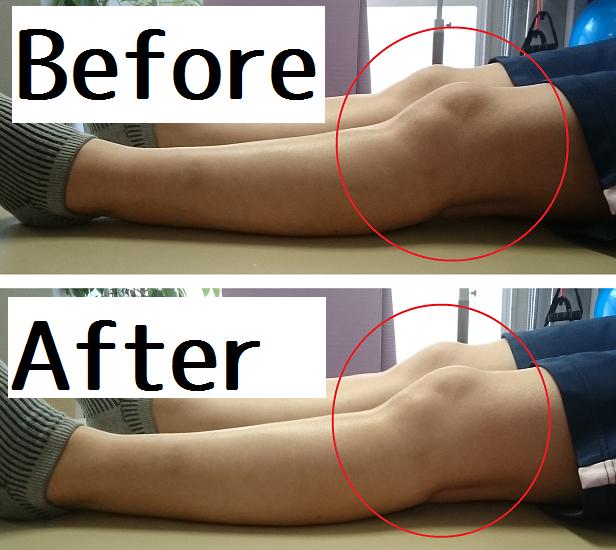 膝のズレ2