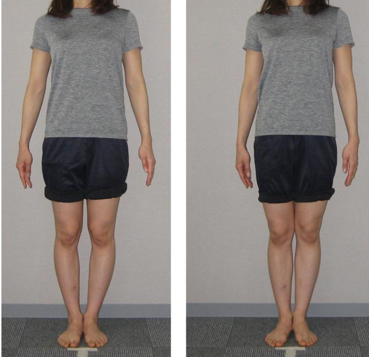 膝下O脚が改善するのに必要な期間はどれくらい??
